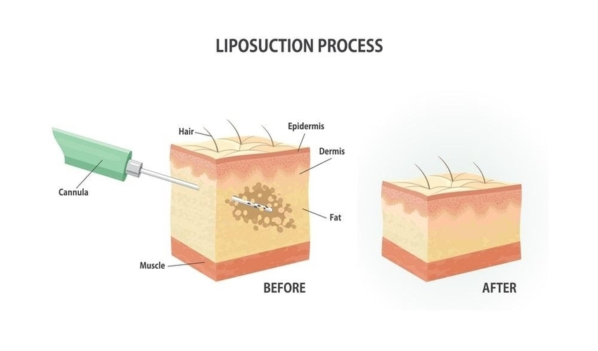 Be Fat-Free Through Liposuction Surgery
